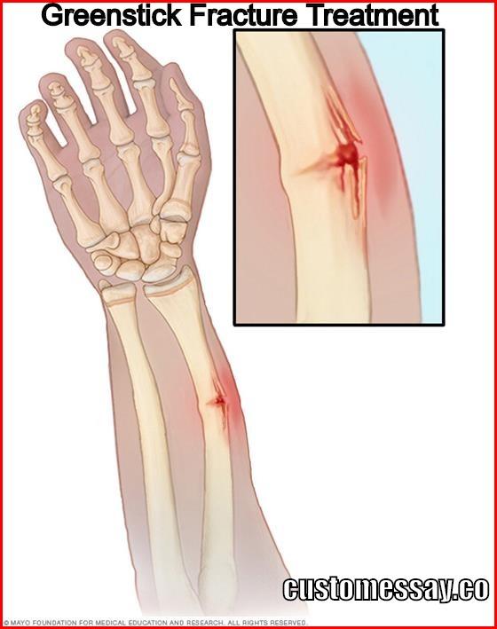 Greenstick Fracture Treatment
