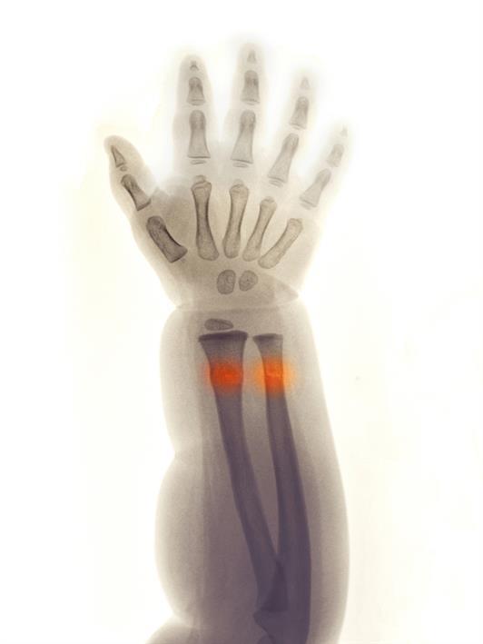 Greenstick Fractures Symptoms