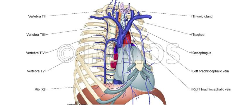 What Is Superior Vena Cava Syndrome