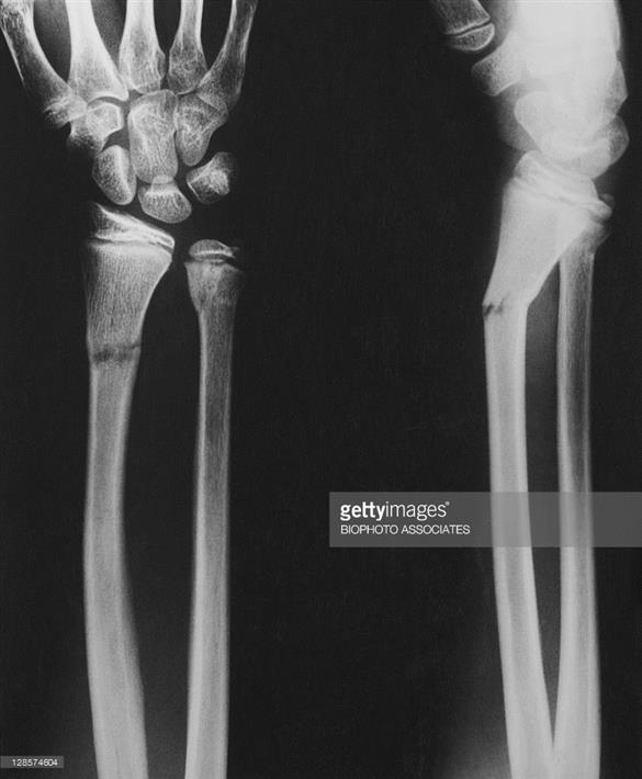 What Is Greenstick Fracture
